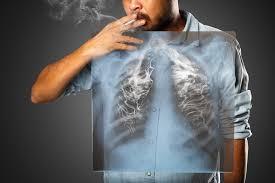 Smoking-related diseases