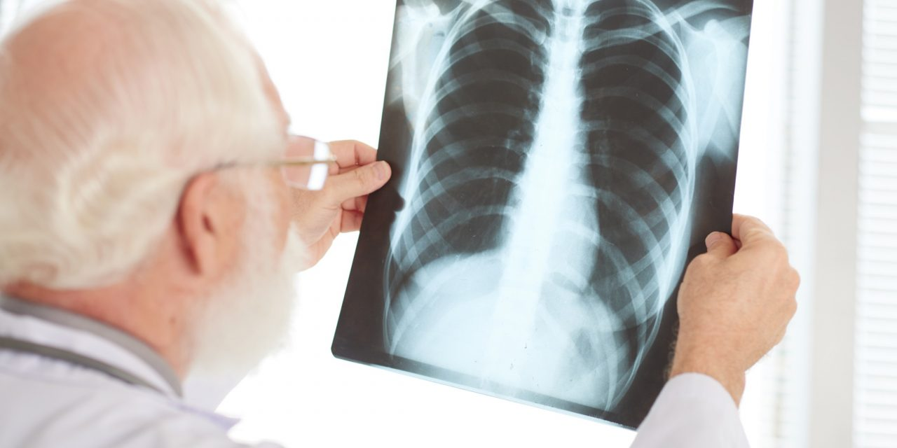 Chronic obstructive pulmonary disease and asthma