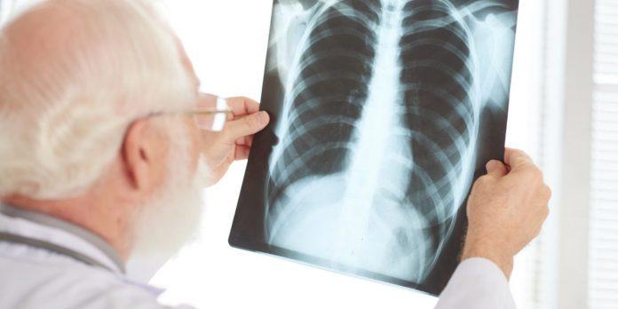 Chronisch obstruktive Lungenerkrankung und asthma